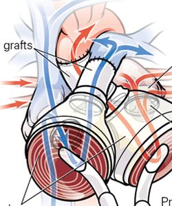 « Total Artificial Heart Implantation